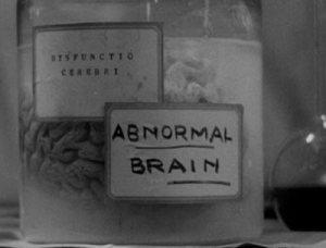 frankenstein-abnormal-brain