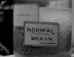 frankenstein-normal-brain